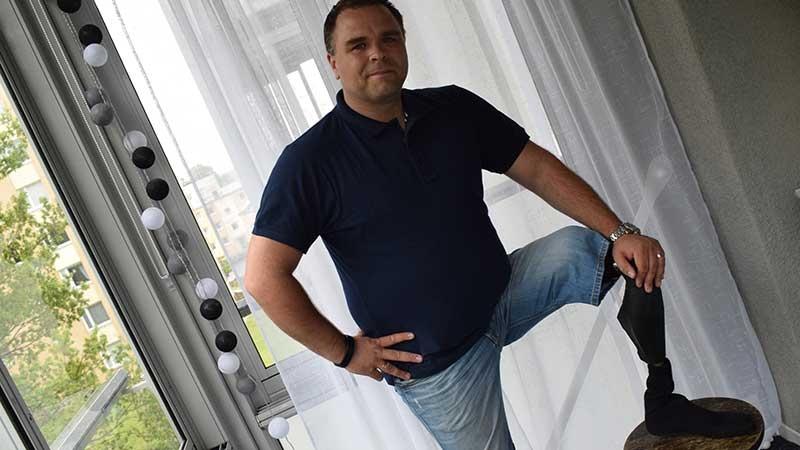 Tomas Stenbäck visar upp sin protes